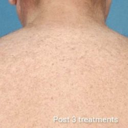 Laser Hair Removal After 1