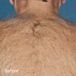 Laser Hair Removal Before 1
