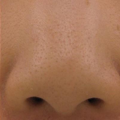 INFINI 3D Skin Tightening | London Premier Laser Clinic