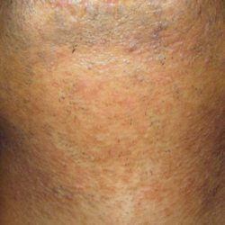laser hair removal beard after
