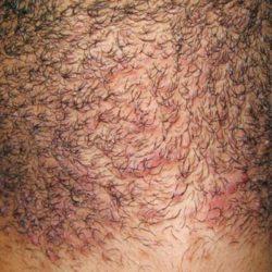 laser hair removal bear before